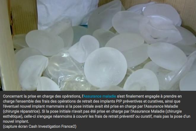 prothèses PIP © (capture écran)