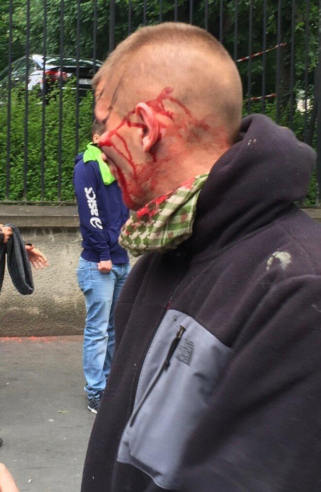 Coup de matraque sous l'oeil-Paris-14/06/2016 © Pascal Maillard