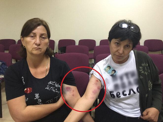 Mères violentées par la police © Novaya gazeta