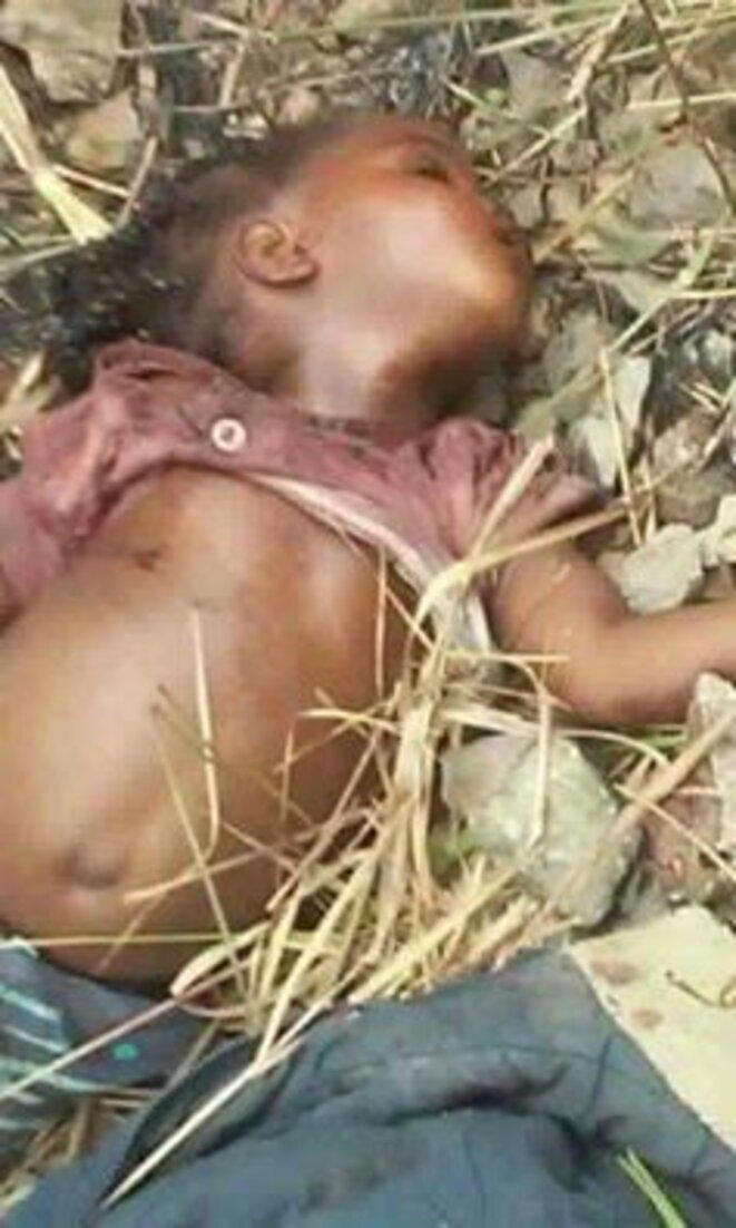 Congo_Fillette victime du pogrom de Sassou dans le Pool