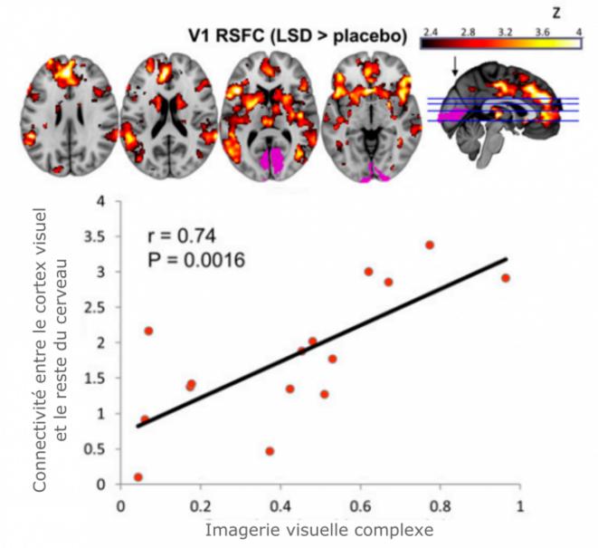 En haut, augmentation de la connectivité entre V1 (en rose) et le reste du cerveau (de rouge à jaune). En bas, corrélation entre cette augmentation et l'intensité des hallucinations visuelles ressenties - Carhart-Harris et al., 2016, PNAS