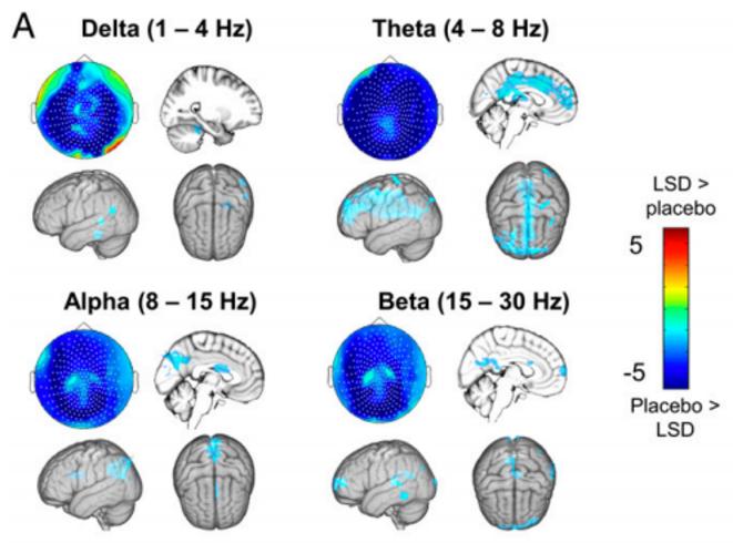 Diminution (en bleu) de la puissance oscillatoire électromagnétique dans différentes bandes de fréquence, telle qu »induite par le LSD et potentiellement liée au phénomène de « dissolution de l'ego » d »après les auteurs de l'étude - Carhart-Harris et al., 2016, PNAS