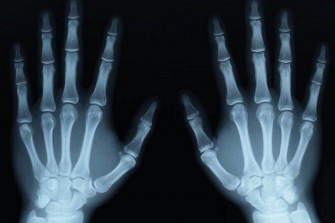 test-osseux-non-fiables-mineurs-isoles-1