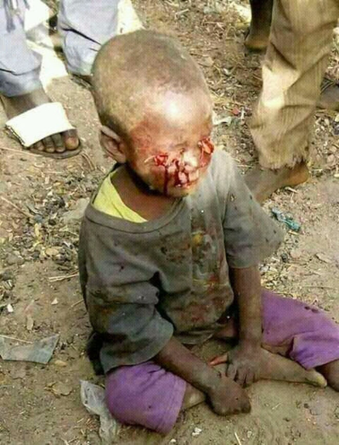 barbarie-sassou-bebe-torture-yeux-creves