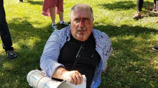 Le 16 mai à Washington les membres de la sécurité d'Erdogan ont frappé des manifestants.