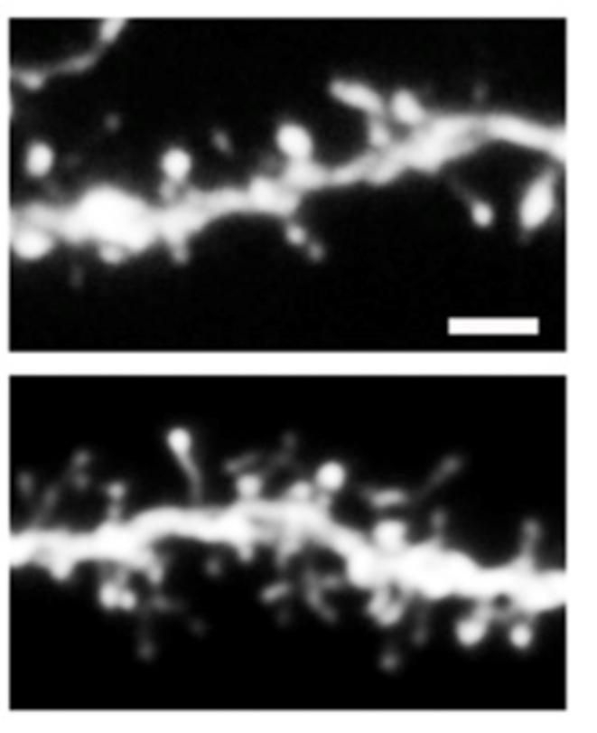 SRGAP2B et SRGAP2C rendent les neurones plus immatures. En haut, une partie de neurone exprimant seulement le gène ancestral SRGAP2 : ces épines dendritiques sont peu nombreuses et grosses. En bas, une partie neurone exprimant le gène ancestral et le gène spécifiquement humain SRGAP2C : ces épines dendritiques sont nombreuses et fines. @Charrier C. & Joshi K. et al., Inhibition of SRGAP2 function by its human-specific paralogs induces neoteny during spine maturation, Cell, 2012.
