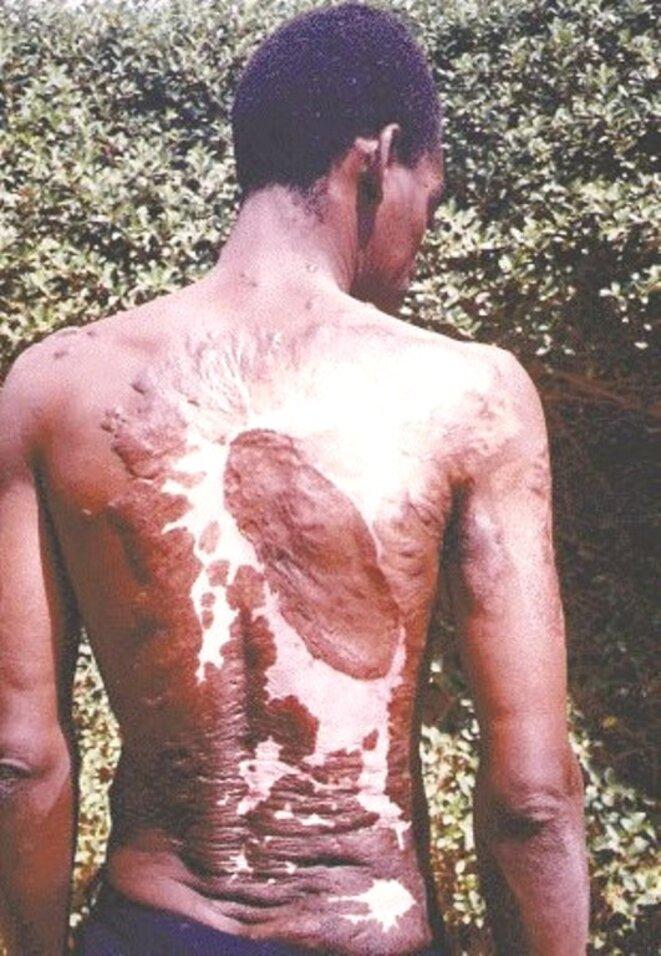 Le dos d'Amidou Ouedraogo codétenu de David Ouedraogo après avoir été torturé © DR