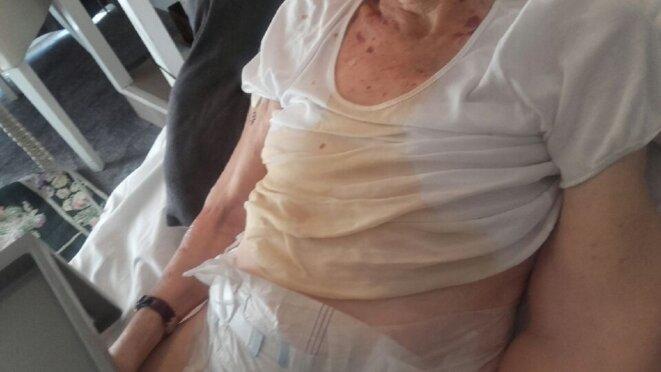 Une résidente, trouvée souillée dans son lit en juin 2017, à la résidence Les Bords de Seine d'Orpea.