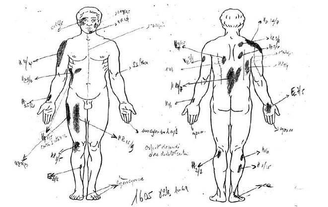 Schéma montrant les multiples hématomes découverts sur le corps d'Ali Ziri lors de la seconde autopsie