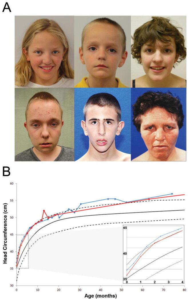 Physical characteristics of the CHD8 phenotype © Bernier R. et autres