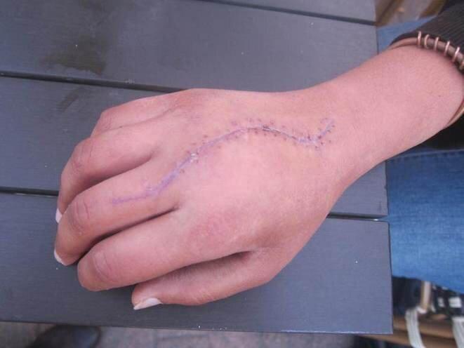Le 5 novembre 2014, une longue cicatrice marquait la main d'Elsa Moulin, à cause d'une incision réalisée par le chirurgien pour éviter une nécrose des tissus. © LF