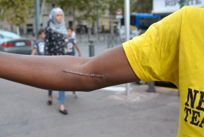 La cicatrice de Drissa, après son agression en juillet. Il est soigné par un kiné. © LF