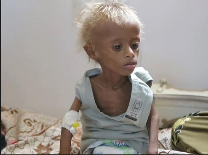 yemen-famine-03