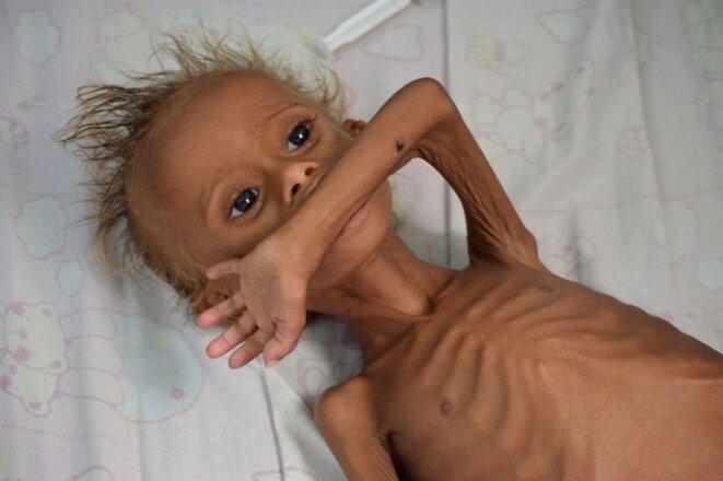 5 millions d'enfants aux portes de la Famine, en cause la vente des armes par la France à l'Arabie saoudite