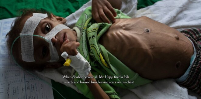 Yémen © Tyler Hicks - New York Times