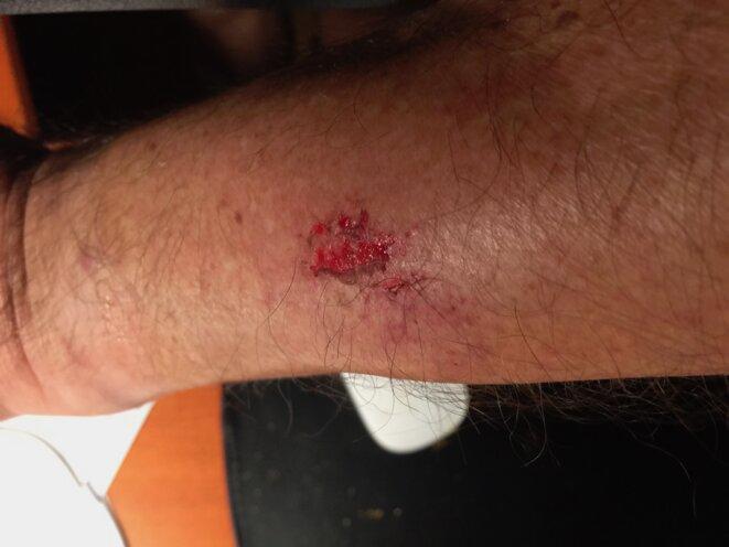 blessure-pascal-maillard-hematome-de-7-cm