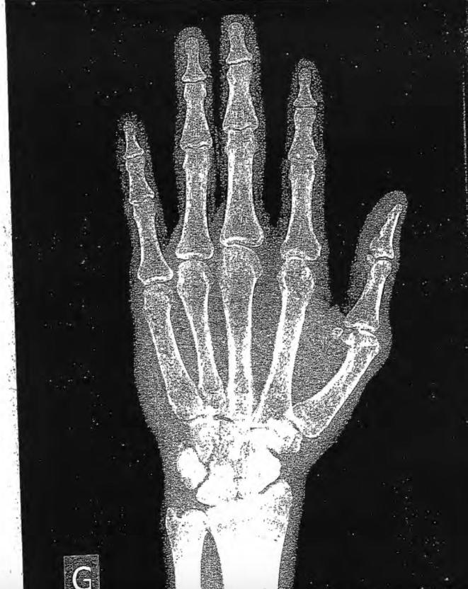 Un exemple de radiographie du poignet gauche, que le médecin commente en ces termes : «L'âge osseux de ce garçon est estimé à plus de 18 ans, moins de 18 ans et demi.» © DR