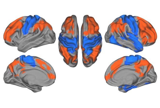 Le cerveau humain en quatre vues Des signaux tachetés : La communication dans le cerveau autiste peut être fréquente dans certaines parties (rouge) et intermittente dans d'autres (bleu). © Spectrum News