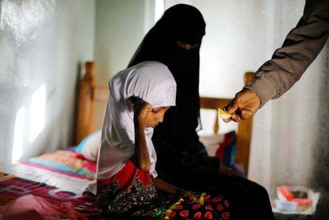 Depuis quatre ans au Yémen, 85 000 enfants sont déjà morts à cause de la faim ou de maladies. © Reuters