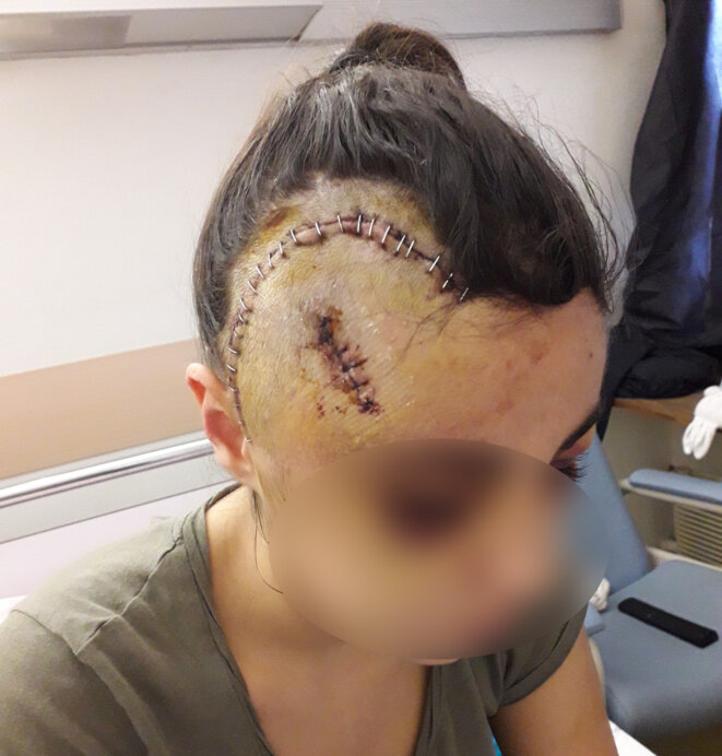 Maria, aged, 19, five days after she was attacked by police officers in Marseille on December 8th 2018. © DR