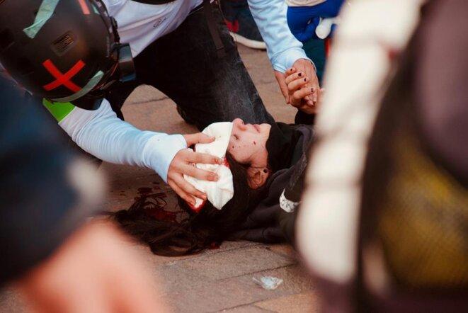 Toulouse, le 02/02/2019. Manifestante touchée par un flashball de type Penn arms. © Pierre Thomas/IPR