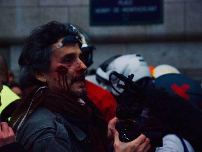 Paris le 05/01/2019. Journaliste blessé par un flashball LBD 40 © Pierre Thomas/IPR