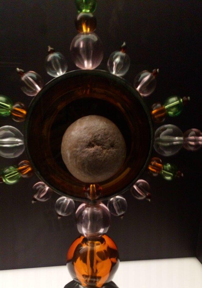 Ce n'est pas un spermatozoïde, ni un gland, c'est un calcul rénal © FHEL Landerneau - Cabinets des curiosités