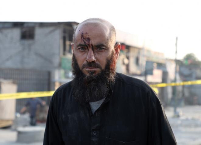 Un afgano herido durante un atentado suicida en Kabul, a principios de septiembre de 2019. © Reuters