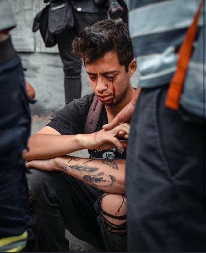 Gustavo Gatica vient de perdre ses deux yeux, Santiago, le 8 novembre 2019
