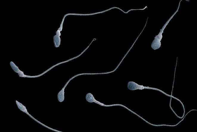 """Vue microscopique des spermatozoïdes Comme père : Une mutation """"spontanée"""" observée chez un enfant autiste peut en fait être détectable dans le sperme de son père. © Eye of Science/Science Source"""