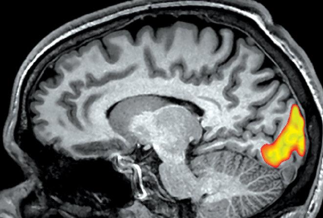 Vue de côté du cerveau humain, la zone mise en évidence à l'arrière du cerveau est activée par des stimuli visuels. © Science Photo Library