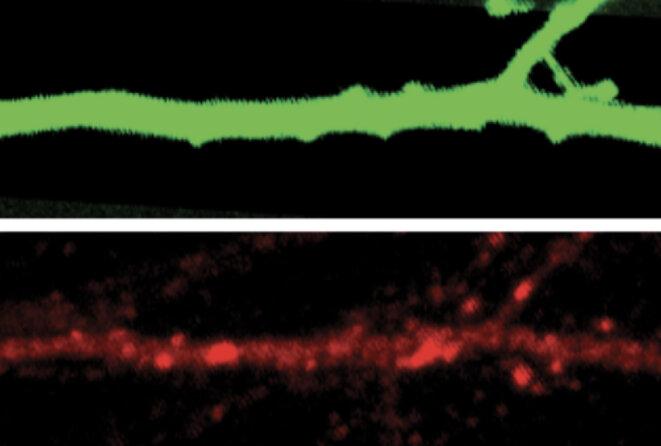 Réactions altérées : chez les souris sans gène SHANK3, les neurones réagissent mal aux changements dans l'information sensorielle.
