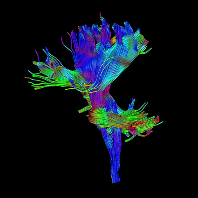 Les symptômes moteurs et sociaux de l'autisme peuvent remonter à un seul faisceau de nerfs dans le tronc cérébral. © Spectrum News