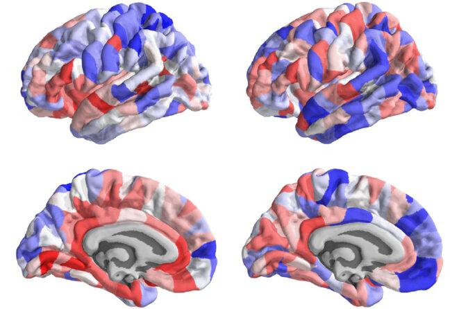 Images du cerveau codées par couleurs (en rouge et en bleu) pour montrer les changements structurels de l'autisme.