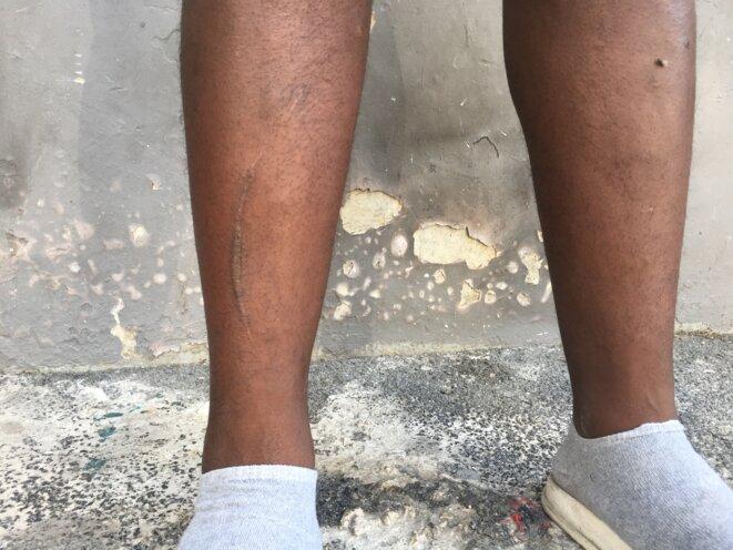 Les molets d'un jeune résident de Felix-Pyat, blessé au cours d'une interpellation policière © Julie Déléant