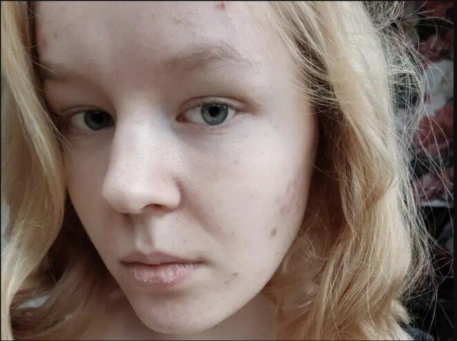 «Je ne vis pas vraiment depuis si longtemps», a écrit Noa Pothoven, 17 ans, dans un dernier post sur les réseaux sociaux. (Noa Pothoven / Facebook)