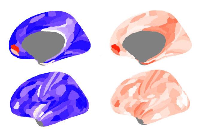 Cerveau masculin : Les hommes autistes présentent un plus grand déséquilibre de signalisation dans le cerveau, en particulier dans le cortex préfrontal médian (en haut), que les hommes typiques ou les femmes autistes ou typiques.