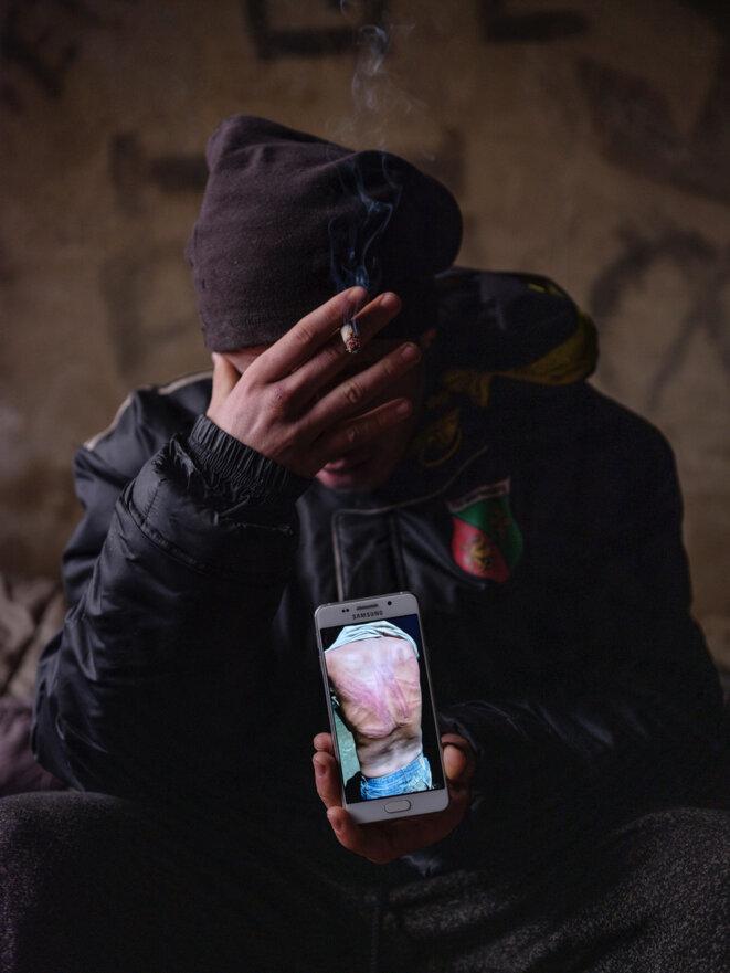 Velika Kladusa, Bosnie, décembre 2020. Les migrants partagent entre eux les photos, prises par les ONG qui leur viennent en aide, des violences subies lors des passages à tabac par les forces croates. © Ljubisa Danilovic/Tendance Floue
