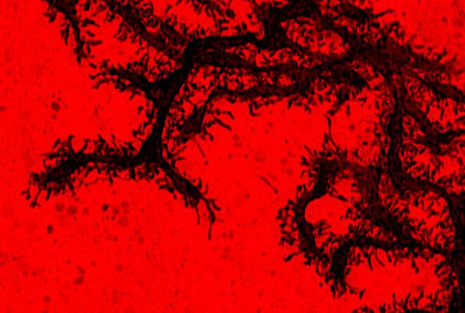 Neurones dans le cerveau de souris ayant moins de branches et d'épines. © Spectrum News