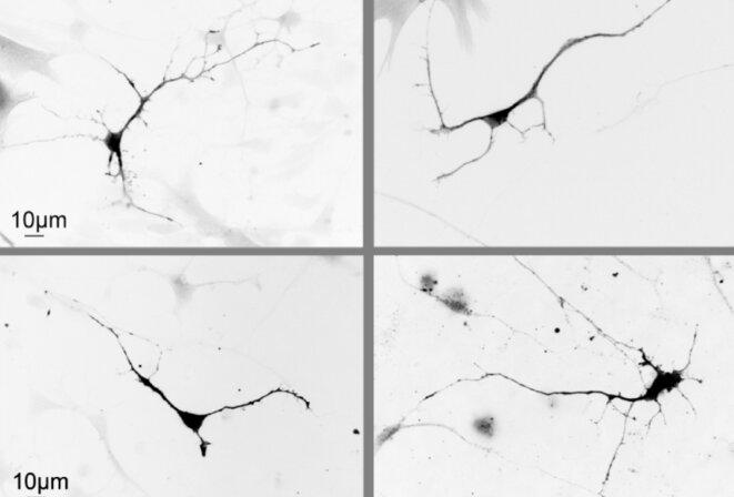 Comme neuf : les neurones dépourvus d'ASH1L (en bas à gauche) en viennent à ressembler à des neurones de contrôle (en haut à gauche) après traitement avec un médicament expérimental (en haut et en bas à droite). © Spectrum News