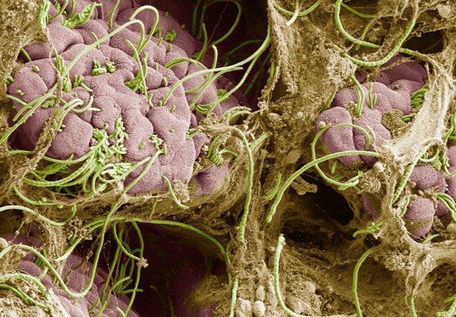 Des bactéries filamenteuses segmentées dans l'intestin (en vert) surstimulent le système immunitaire des souris gravides qui ont une infection, altérant le développement du cerveau du fœtus. © Dan Littman, Alice Liang, Doug Wei et Eric Roth