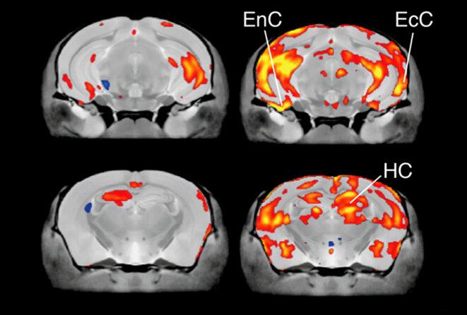 Effets de dose : Le cerveau des souris produisant seulement 35 % des niveaux typiques de protéine CHD8 (à droite) grossit dans plusieurs zones corticales, par rapport à celles produisant 50 % (à gauche).