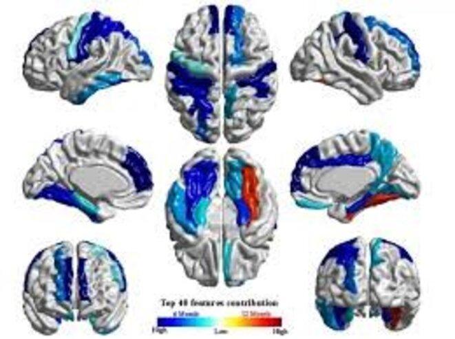 cerveau-autiste
