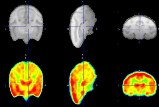 Trois vues en noir et blanc du cerveau de singes à côté de trois versions en couleur montrant la zone cible du médicament en rouge : Des études antérieures chez le singe ont montré que le nouveau médicament cible une enzyme présente dans les parties du cerveau (rouge, rangée du bas) affectées par les mutations du X fragile. © Avec l'aimable autorisation de Tetra Therapeutics
