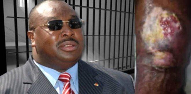 Kpatcha Gnassingbé, ancien ministre de la Défense, atteint d'un grave ulcère, menacé d'un risque d'amputation