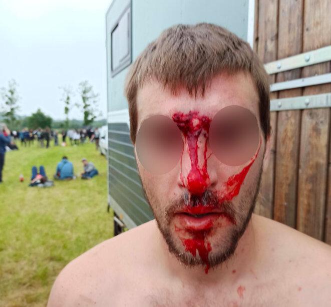 Jeune homme blessé, ancien hippodrome de Redon, 19 juin 2021. © Association Techno +