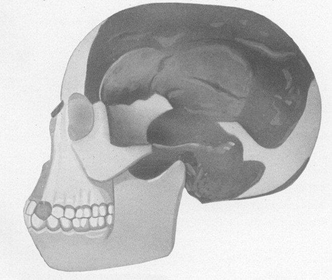 Reconstitution du crâne de Piltdown © J.Arthur Thomson