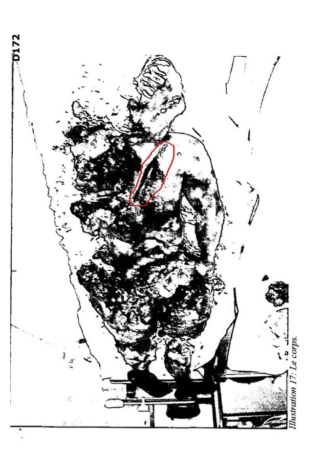 Photo corps avec balafre