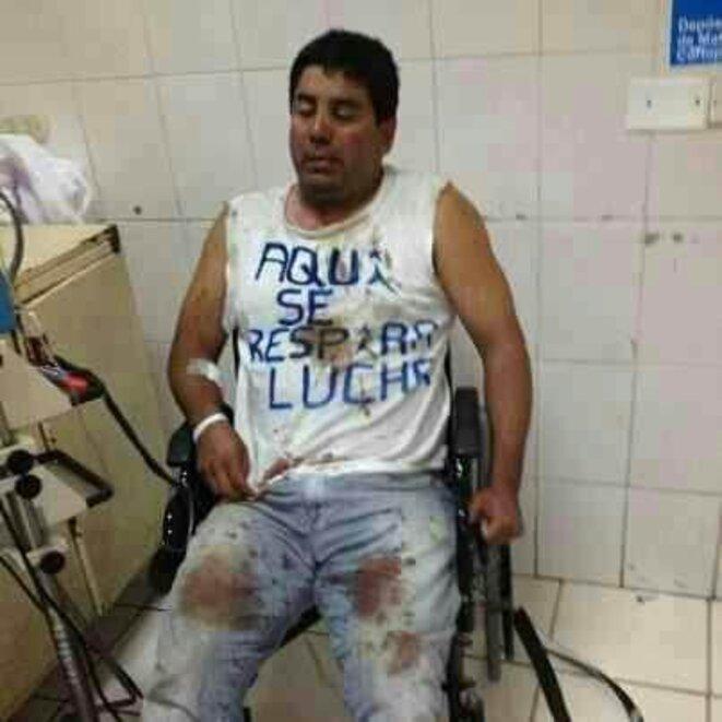 Enrique Solar attendra des soins médicaux pendant des heures ce 18 mars. © Anonyme