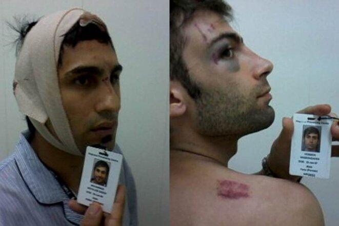 Asile: à Manus, les marques d'une violence inouïe